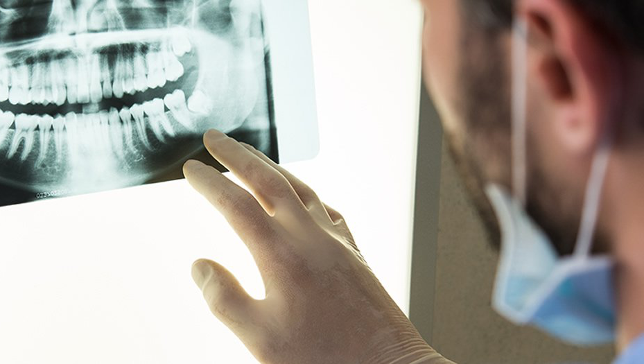 dentist looksing at dental x-rays
